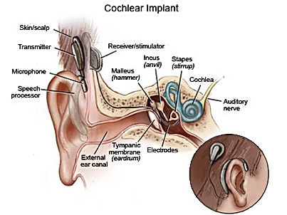Implant Cochlear Diagram-2