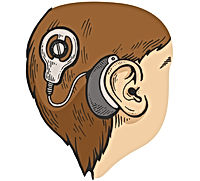 cochlear-implant-color-sketch-engraving-