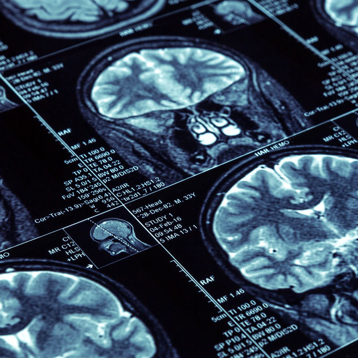 Practical Approach to Neuroradiology (Brain/Spine Day Tickets)