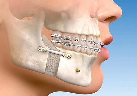 cirurgia-ortognatica.jpg