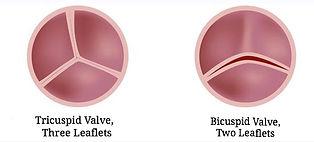 Tricuspid vs. Bicuspid Valve