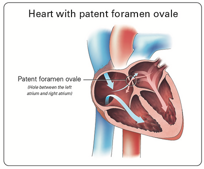 Normal Heart Patent Foramen Ovale