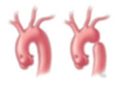 Normal vs Coarctation of the Aorta