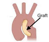 Graft in Heart