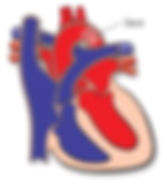 Stent in Heart
