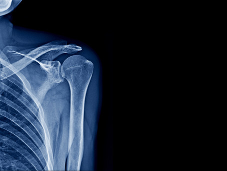 I've Torn My Rotator Cuff–Do I Need Surgery, Or Can Physical Therapy Help?