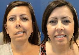 Have You Experienced Facial Droop? Unable To Close One Eye? You May Be Afflicted with Bell's Palsy.
