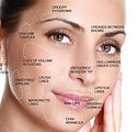 dermal-fillers-face-map.jpg