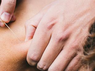 Hercertificatie Dry Needle Therapeut