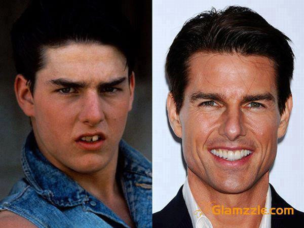 Tom Cruise beforeafter.jpg