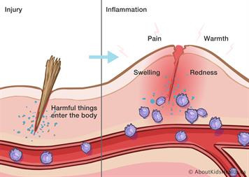 What is inflammation, and how can exercise help ...?