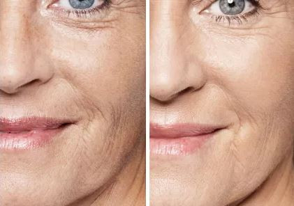 Microneedling Facial (MTS)