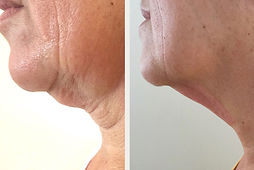 Fibroblast Neck Lift.jpg.exporting.jpg