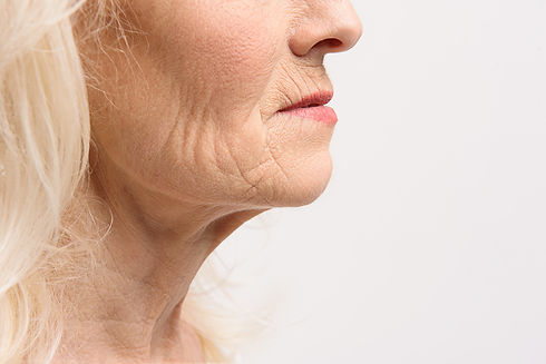 aging-turkey-neck.jpg
