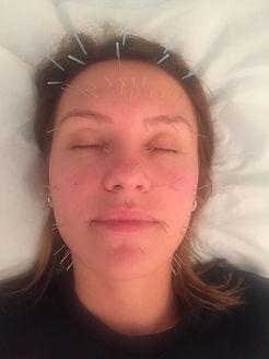 CosmeticAcupuncture.JPG