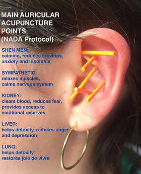 Acupuncture NADA Protocol .jpeg