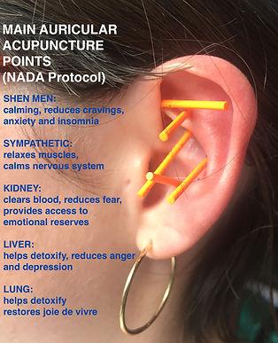 Acupuncture NADA Protocol .jpeg
