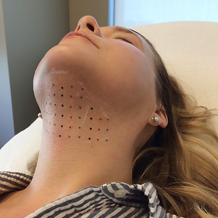 Kybella_Fat_Removal_Treatment.png