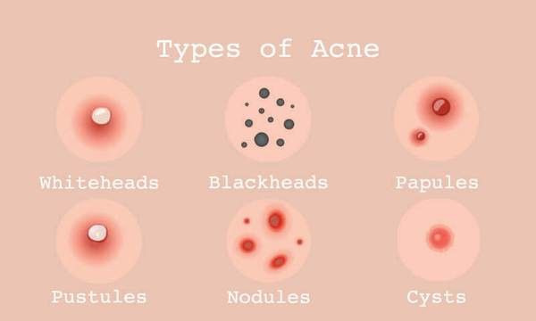 Acne, Tretinoin,Pimples,retin A
