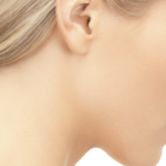 ear-reduction-surgery-150x150.png