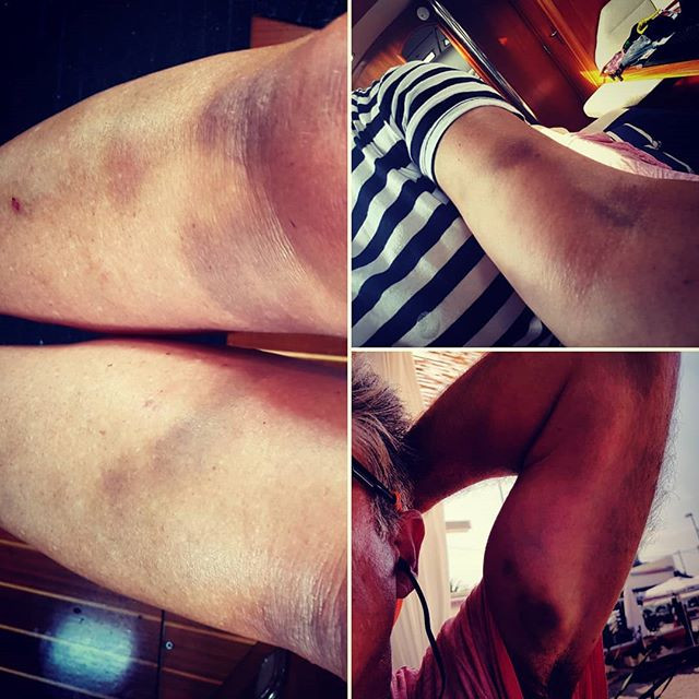 Some of our bruises!