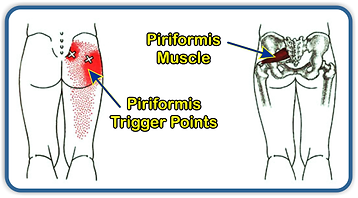 Piriformis muscle trigger point