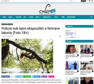 Lexo.al: Policia nuk lejon ekspozitën e femrave lakuriq (Foto 18+)
