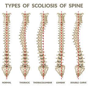 types-of-scoliosis.jpg