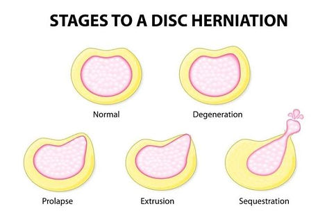 stages 2.jpg