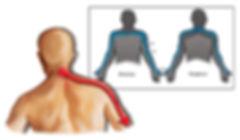 radiculopathy (1).jpg