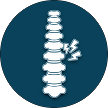 Cervical Myelopathy.png