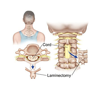 Laminectomy.jpg