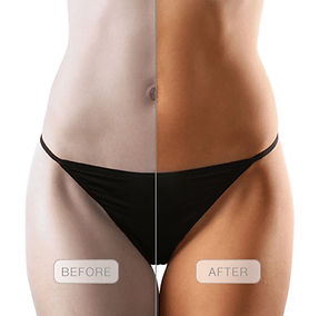 Airbrush Spray Tanning Tampa, FL Mobile Tanning Services