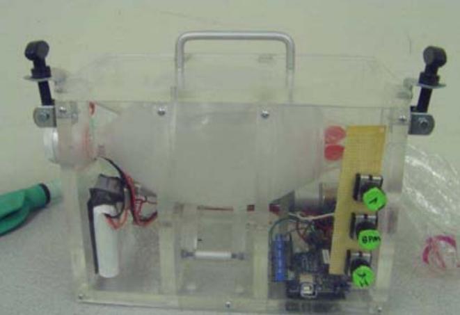 MIT Medical Ventilator