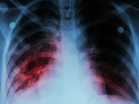 Tuberculose: sintomas e tratamento.
