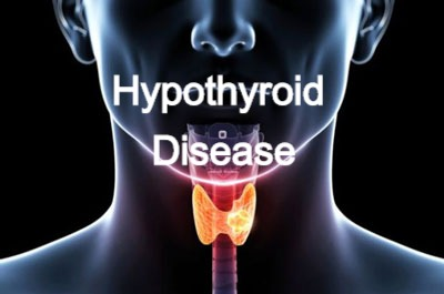 Hypothyroid Disease