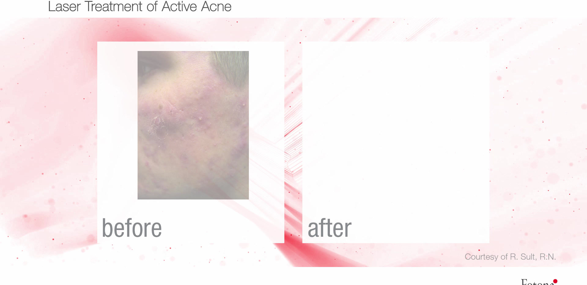 Laser Treatment of Active Acne