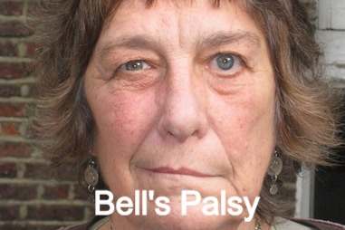 Bells_Palsy_edited