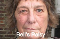 Bells_Palsy_edited