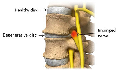 Do you HAVE to have surgery for a disc herniation?