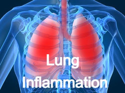 Lung Inflammation