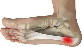 Plantar Fasciitis Pain Relief!