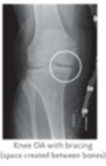 arthritis pain relief