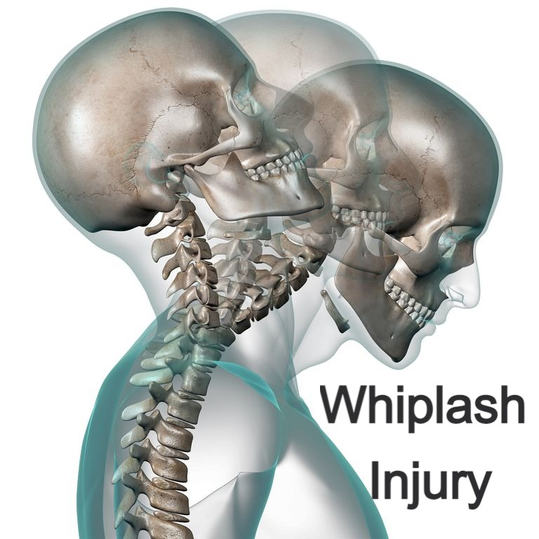 Whiplash Syndrome
