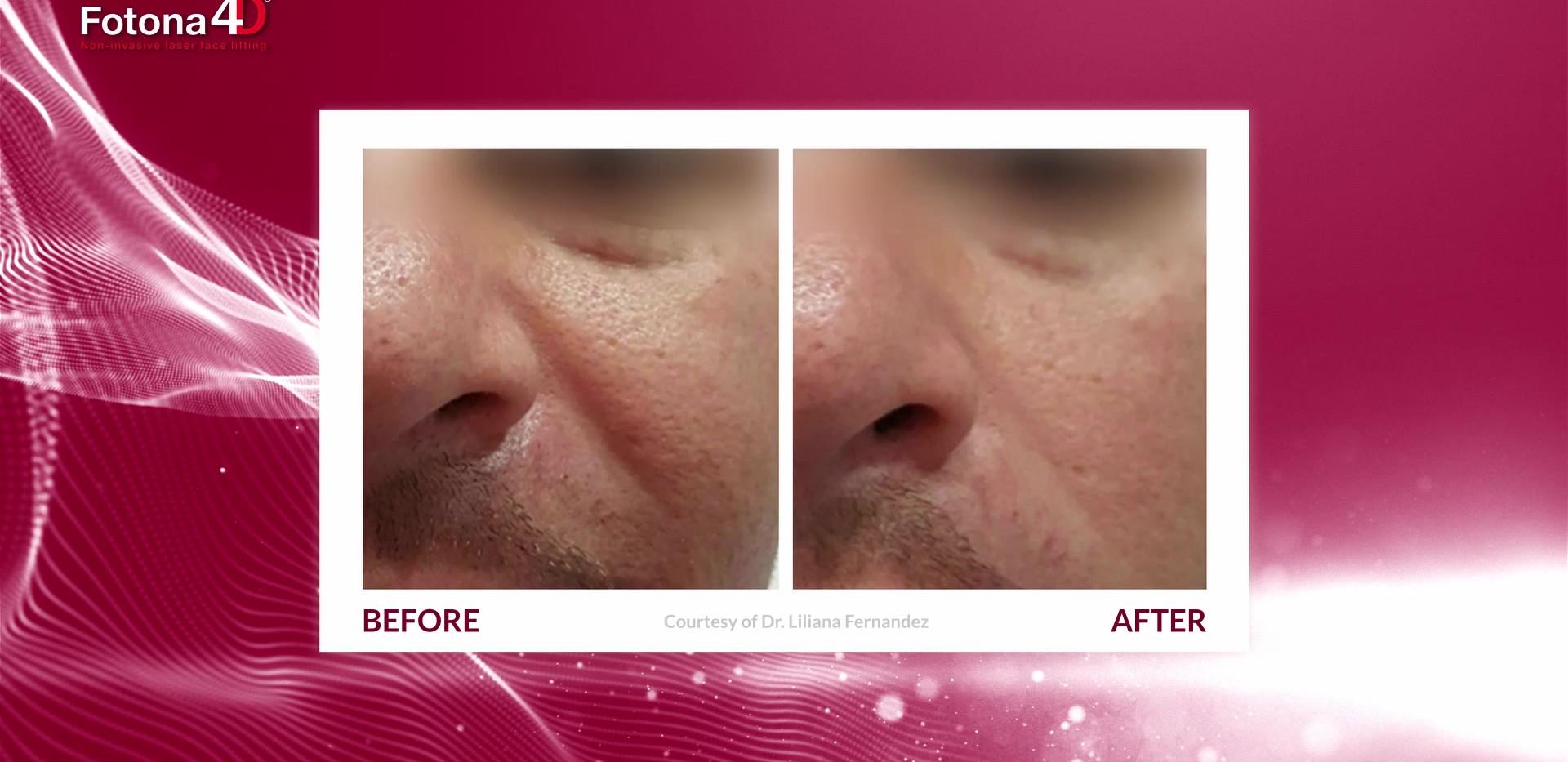 Fotona4D - Non-invasive Laser Facelift