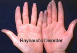 Raynaud's Disease