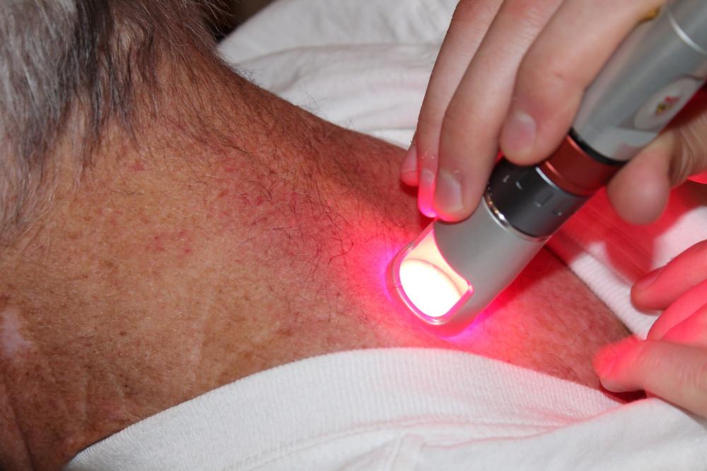 Laser treatment in Kalispell