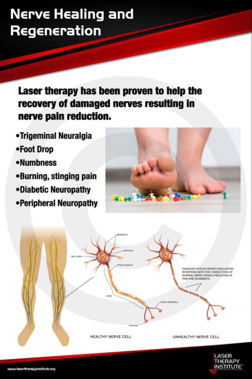Poster- Nerve Healing