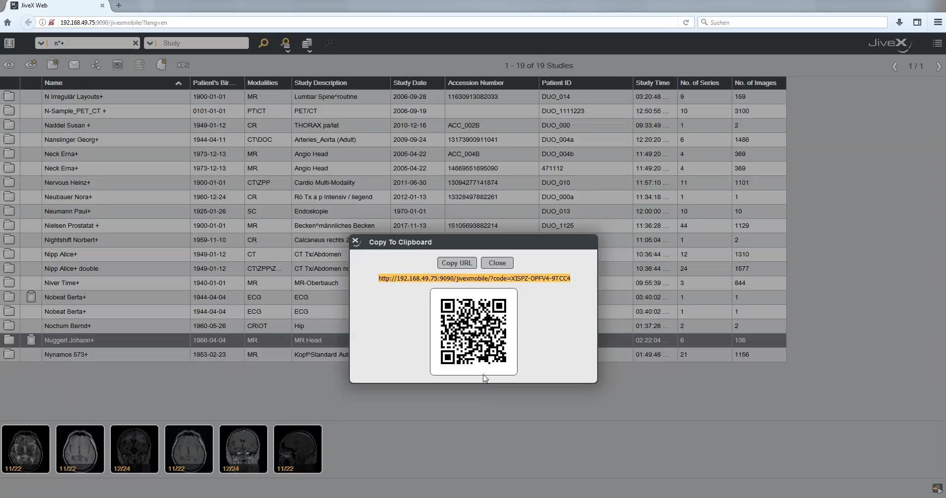 Extention JiveX Web Viewer Demo Video.mp