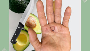 Avocados and Dangers In the Kitchen